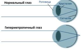 Гиперметропия