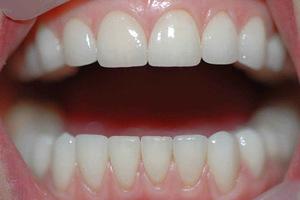Эстетическое протезирование и отзывы о винирах на зубы