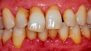 Чай и здоровье зубов